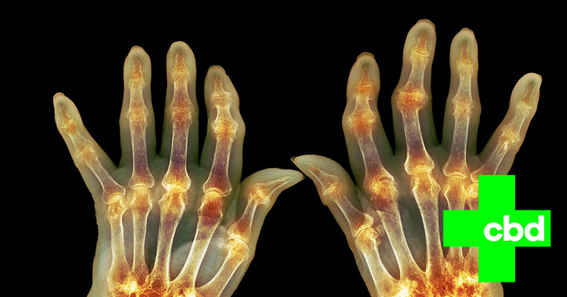Tips That May Help You Put Rheumatoid Arthritis Into Remission